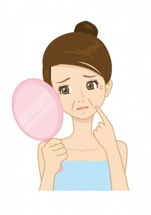 乾燥による白い粉に悩む女性