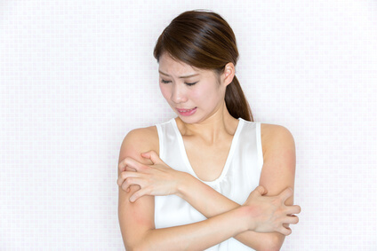 アトピー性皮膚炎に悩まされる女性