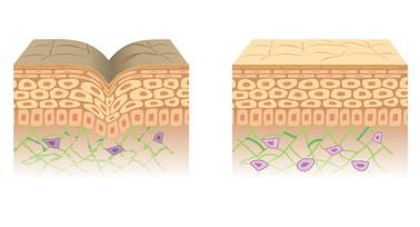 皮膚表面の断面図の比較。若い健康な肌と老人性乾皮症の肌