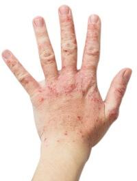 炎症がある手にはステロイド