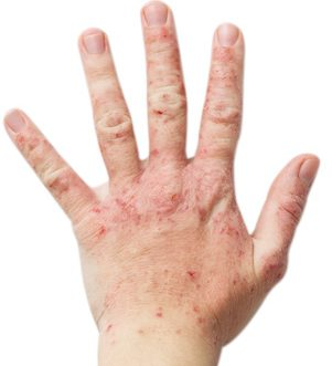 手湿疹のひどい状態