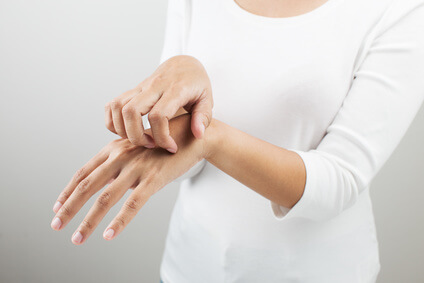 手湿疹に悩む女性