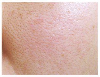 皮膚がたるんで、たるみ毛穴が目立つお肌