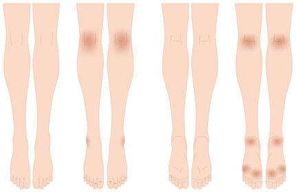足にあらわれる黒ずみの特徴