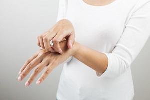 アトピー性皮膚炎の女性