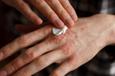 皮膚科でひび割れ、あかぎれの治療を行う女性の手