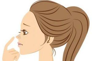 無理な角栓の除去でいちご鼻に悩む女性