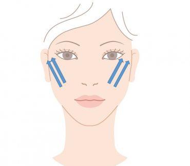 フェイスリフトによる目の下のたるみを治療