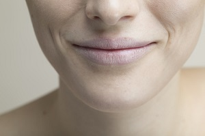 急激なダイエットでほうれい線が目立つ女性