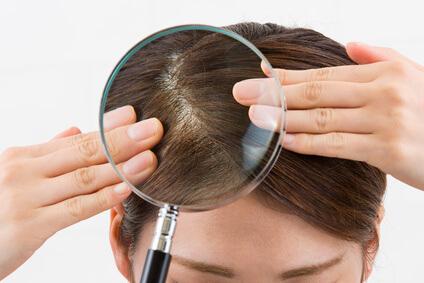 髪の毛の分け目が目立ってきて悩む女性の写真