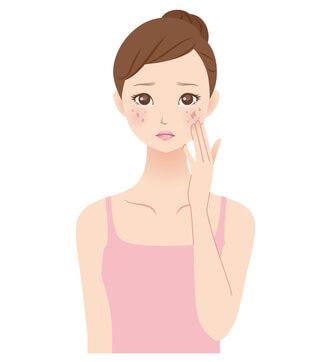 しみやくすみを化粧水でケアしたい女性