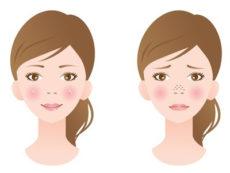 角栓を取るための酵素洗顔のメリットとデメリットを考える女性