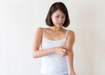 かゆみ、蕁麻疹を患う女性