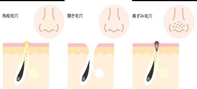 角栓が原因の毛穴の種類