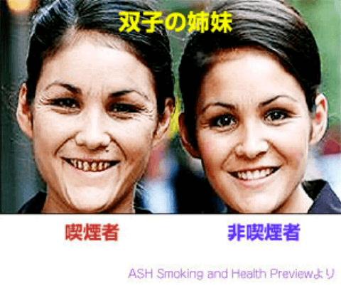 タバコを吸う女性とタバコを吸わない女性