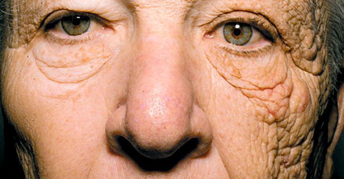 紫外線による顔の片側の光老化がひどい男性