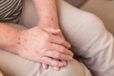老人性色素斑を消したい女性