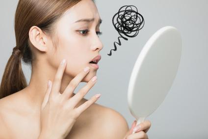 乾燥肌が原因のニキビに悩む女性
