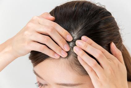 抜け毛が気になる女性の頭皮