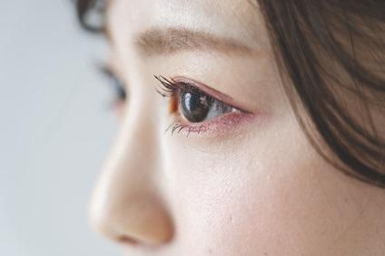 肌のバリア機能低下を気にする女性