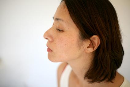 実年齢より老け顔のシミの多い女性