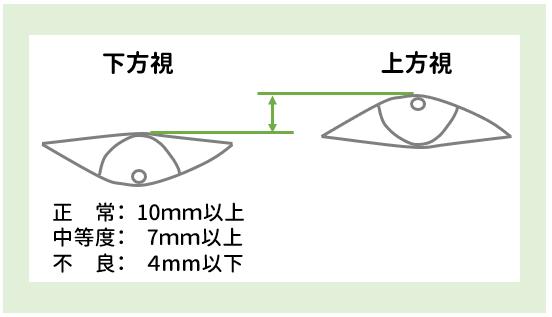 上眼瞼機能検査