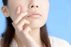 炎症性色素沈着を気にする女性