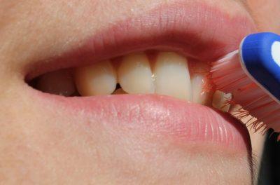 歯を大切にするオーラルフレイルを予防イメージ