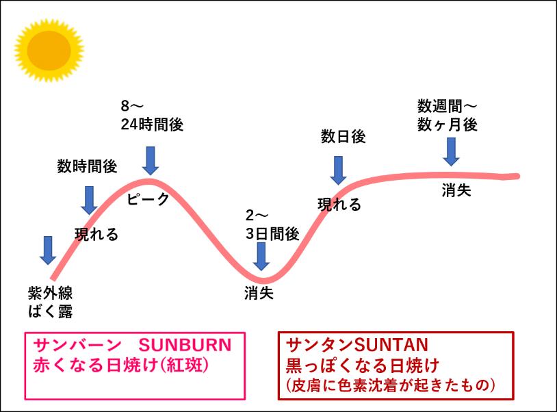 サンバーンとサンタンの違いを表した図